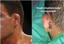 Un luptător UFC a trebuit să-și coase urechea la loc după luptă